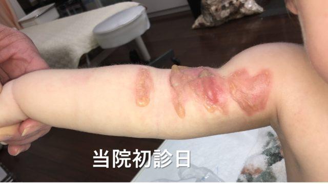 小児右腕熱傷