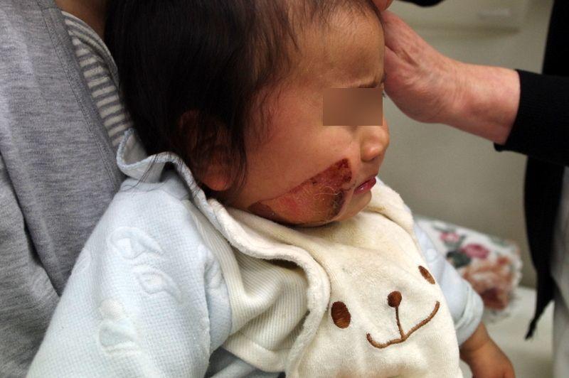 小児右顔面熱傷