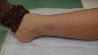 湯たんぽ低温熱傷