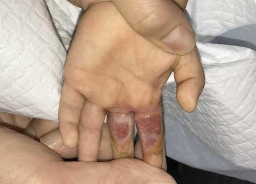 小児左手熱傷
