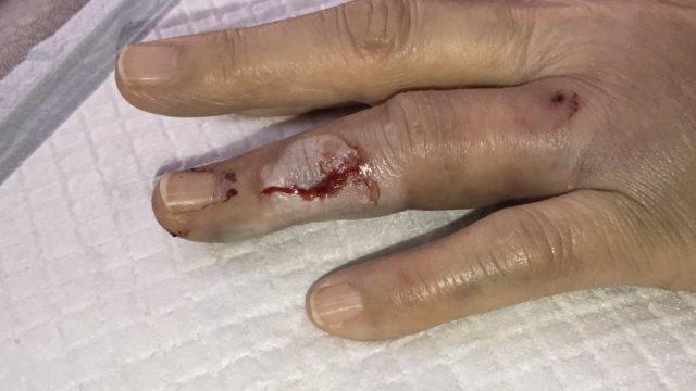 左手指挫創