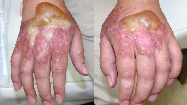 両手重症熱傷