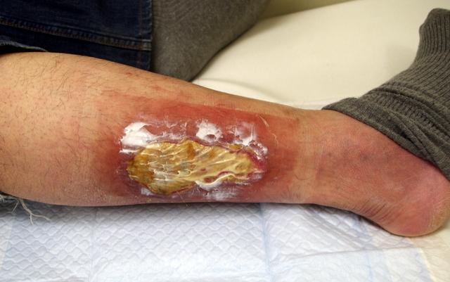 右足低温熱傷