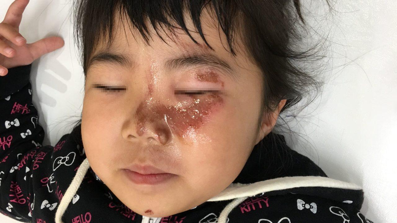 小児顔面挫創