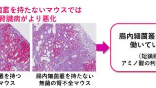 腎機能改善には短鎖脂肪酸がカギ