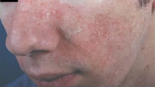 脂漏性皮膚炎とマスク