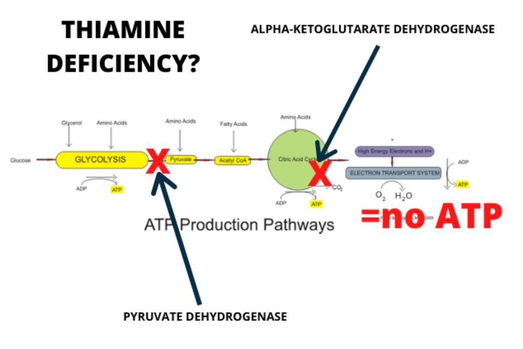チアミン欠乏とATP欠乏