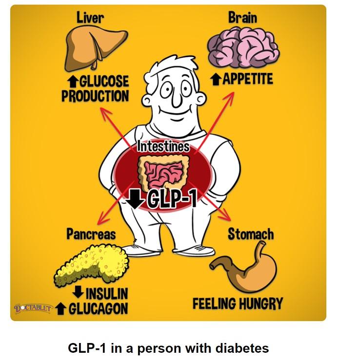糖尿病とGLP-1